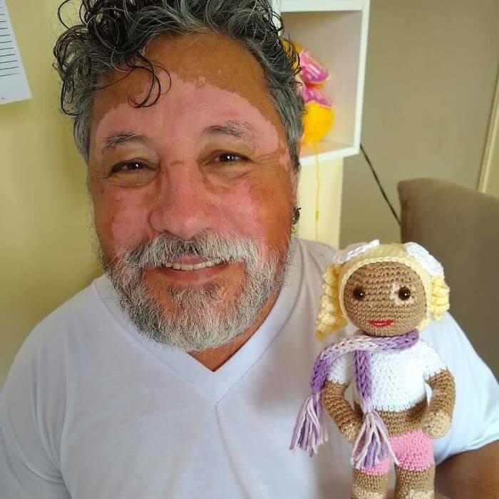 bonecacomvit2 - Senhor com vitiligo faz bonecas de crochê para que crianças se sintam bem com a aparência