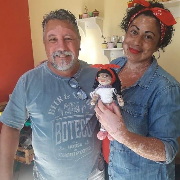 bonecacomvit5 - Senhor com vitiligo faz bonecas de crochê para que crianças se sintam bem com a aparência