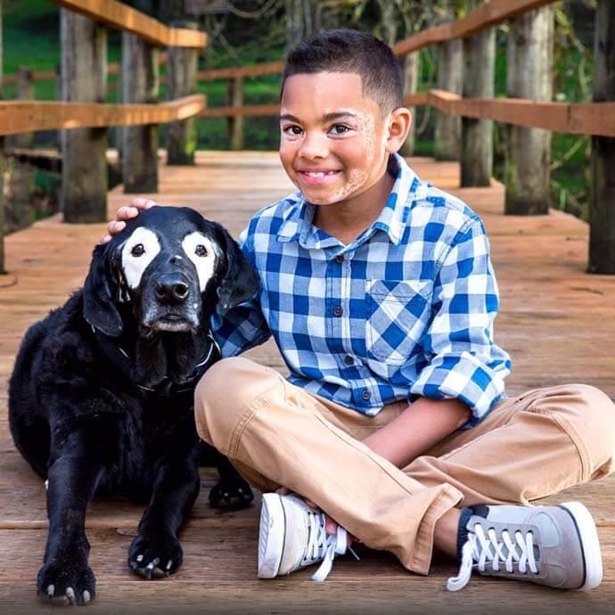 carter3 - Conheça Carter, o menino com vitiligo que começou a se aceitar ao conhecer um cão como ele