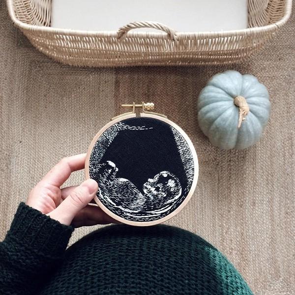 bordado ultrassom - Mãe borda fotos de ultrassom e a lista de pedidos não para de crescer
