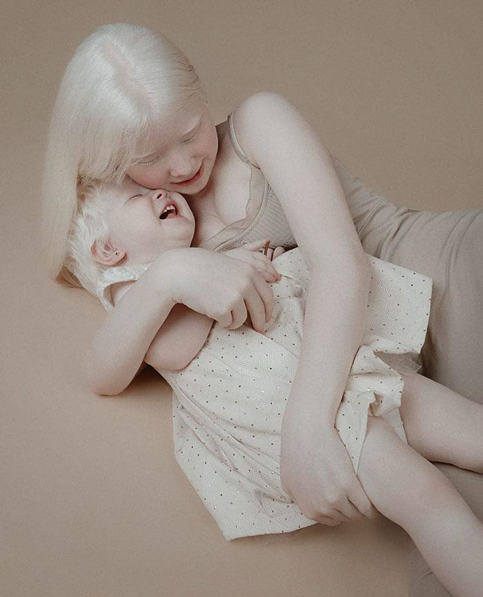 albinas1 - Irmãs albinas encantam o mundo com um ensaio fotográfico fantástico