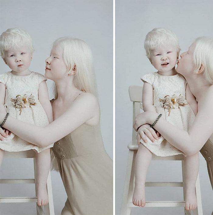 albinas3 - Irmãs albinas encantam o mundo com um ensaio fotográfico fantástico