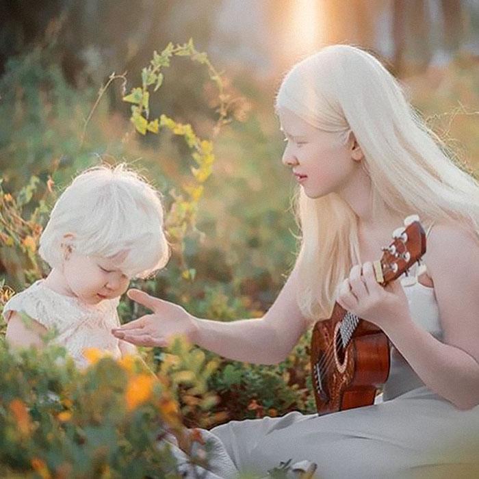 albinas4 - Irmãs albinas encantam o mundo com um ensaio fotográfico fantástico