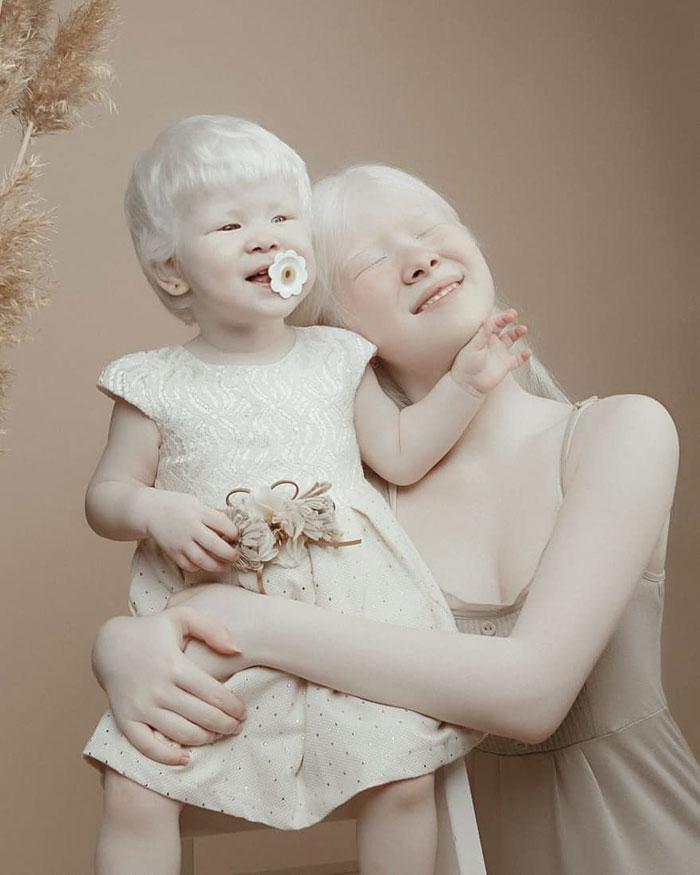 albinas5 - Irmãs albinas encantam o mundo com um ensaio fotográfico fantástico
