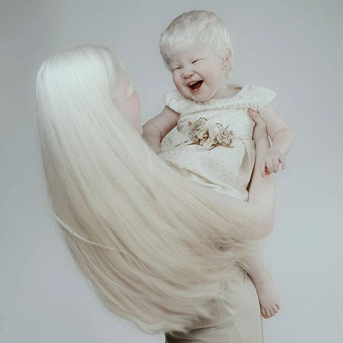 albinas6 - Irmãs albinas encantam o mundo com um ensaio fotográfico fantástico
