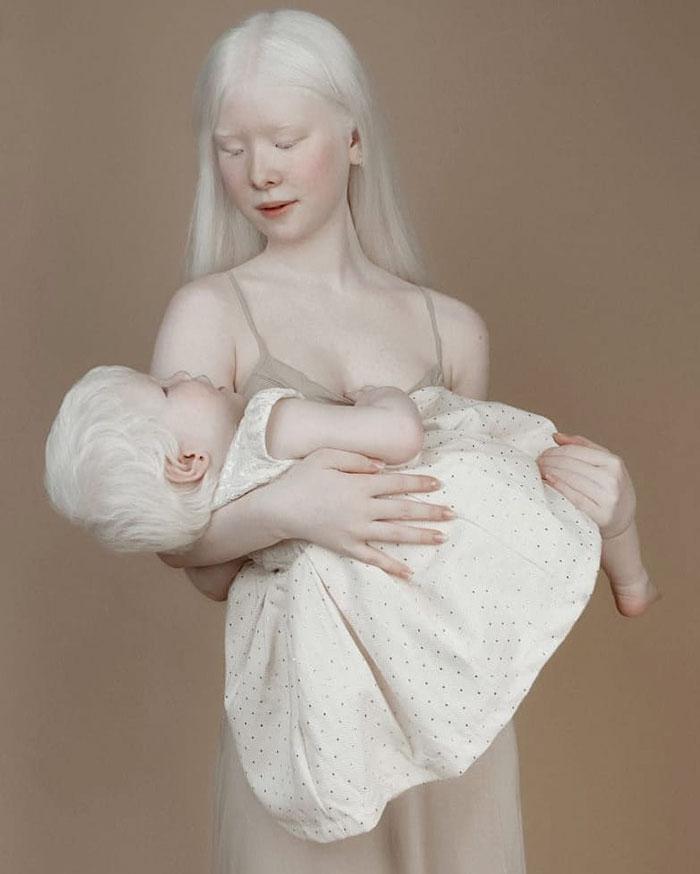 albinas7 - Irmãs albinas encantam o mundo com um ensaio fotográfico fantástico