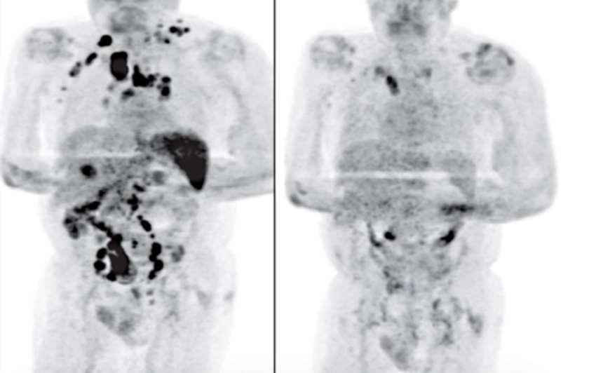 paciente curado de Linfoma apos contrair Covid - O estranho caso do homem que foi curado de câncer linfático após contrair Covid-19