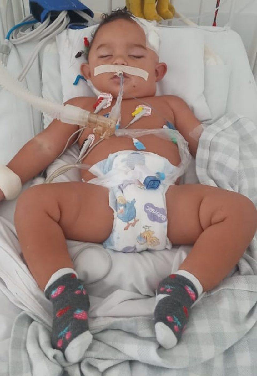whatsapp image 2021 02 01 at 08.15.32 scaled - Bebê passa por cirurgias cerebrais e vai parar na UTI após se jogar do colo de irmã: 'Estar vivo é uma glória'